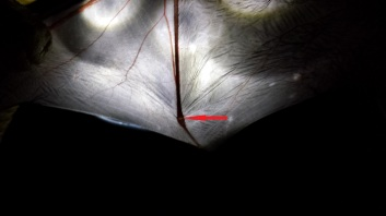 Gap in knuckle typical of juvenile bats. Photo: KPatriquin